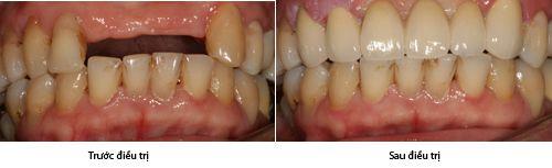 Cầu răng thay thế những răng đã mất