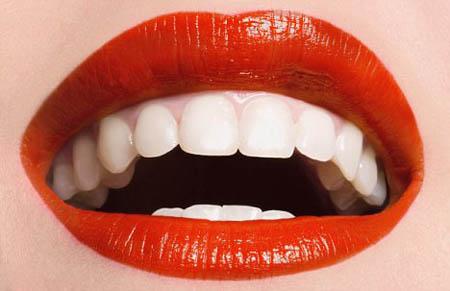 Dịch vụ tẩy trắng răng tốt nhất Tp. HCM