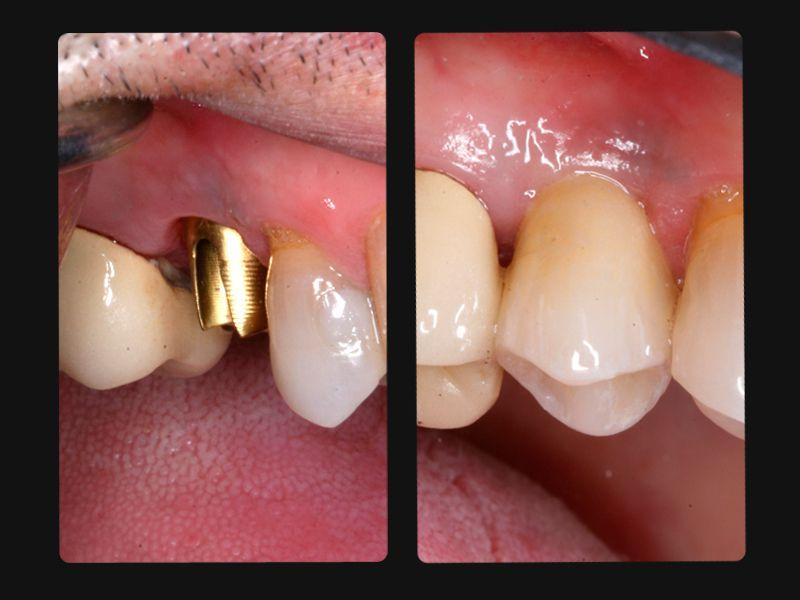 Tại sao nên chọn cấy ghép implant làm răng giả ?