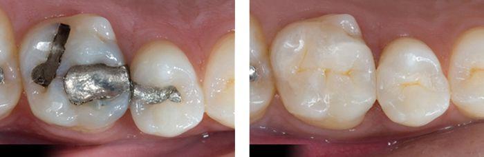 Trám răng bằng composite