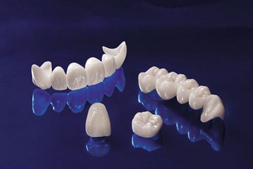 Bọc răng sứ ở đâu tốt uy tín nhất TP.HCM