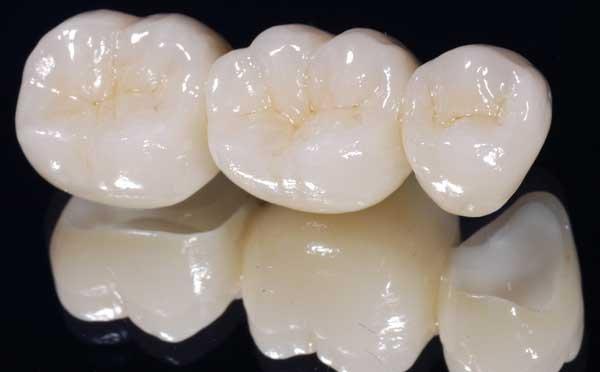 Làm răng sứ titan có tốt không ?