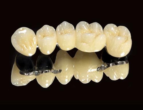 Bọc răng sứ Titan có ưu và nhược điểm gì ?