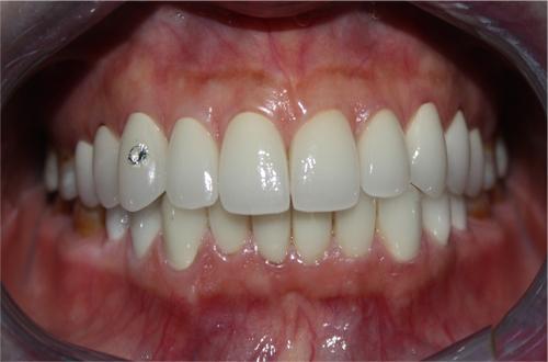 Bọc răng sứ trong vòng bao lâu?