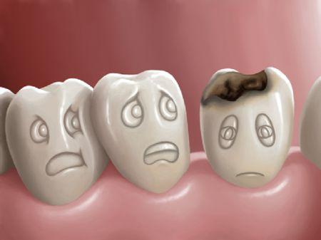 Các bệnh sâu răng ở trẻm em
