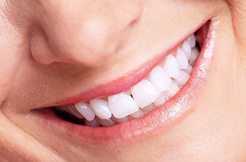 Chăm sóc răng miệng đúng cách không phải ai cũng biết, vì vậy bạn cần tham khảo thêm những gợi ý của nha khoa Việt Pháp dưới đây