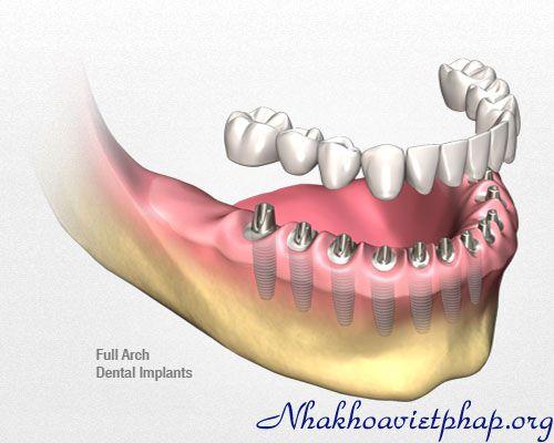 Cấy ghép implant khi bị mất một răng cửa