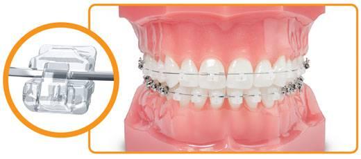 Chi phí niềng răng mắc cài tự đóng
