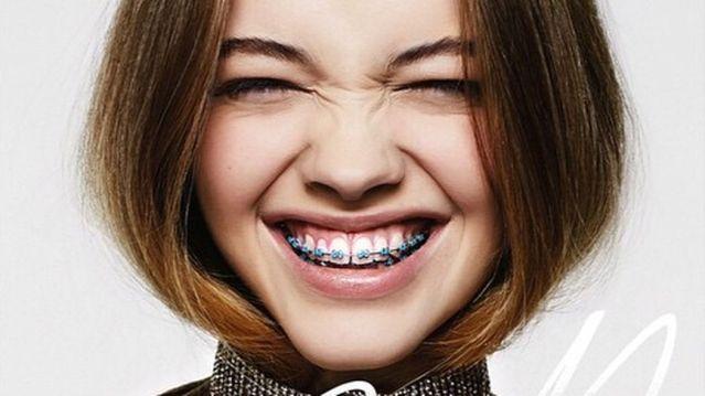 Chi phí niềng răng thưa giá bao nhiêu