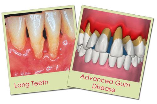 Khi bọc răng sứ bị lung lay phải làm sao ?
