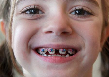 Nguyên nhân răng mọc lệch ở trẻ và cách khắc phục