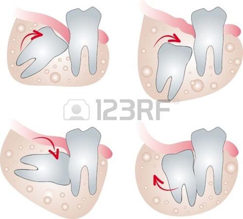 Nhổ răng khôn đau mấy ngày ?