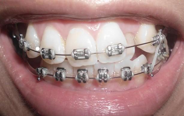 Niềng răng hô nướu có hiệu quả không?