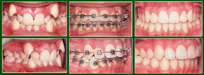 Niềng răng khểnh mất bao lâu?