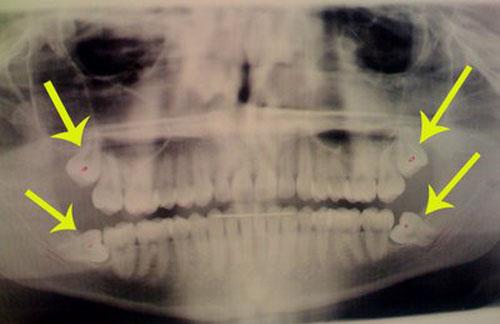 Răng khôn không mọc hết có ảnh hưởng gì không ?