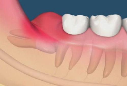 Sưng nướu răng khôn trong cùng phải làm sao?