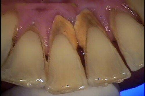 Tại sao cần cạo vôi răng định kỳ