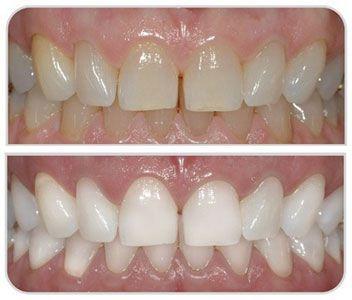 Quy trình tẩy trắng răng bằng đèn laser
