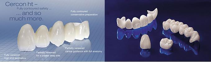 Trồng răng sứ loại nào tốt nhất?