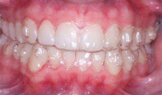 Ưu điểm của niềng răng không mắc cài