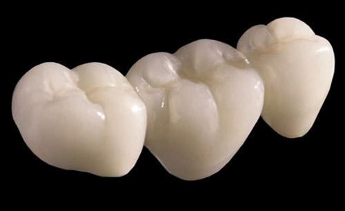 Ưu và nhược điểm của răng sứ cercon