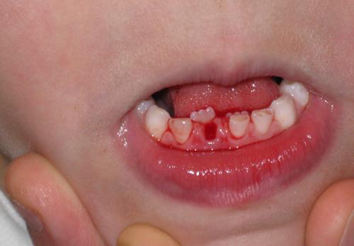 Xử lý tình huống răng vĩnh viễn mọc nhưng răng sữa chưa rụng.